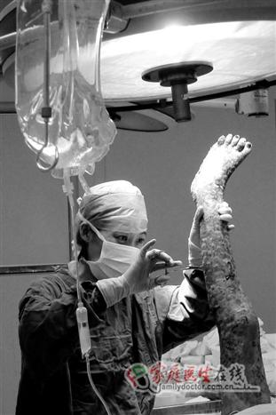 2011年9月23日,一位全身85%烧伤的病人被送进医院,全身上下如同焦炭一般,在烧伤科张雁医生的精心治疗下,平稳地度过了休克期、安全地度过了感染期、又经过数十次取皮、植皮、和换药,才最终康复出院。 ——本图集摄于解放军第458医院,作者:解放军第458医院(空军广州医院)肝胆普外科主任医师、南方医科大学兼职教授孙宁东先生。