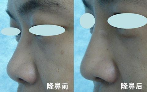 假体隆鼻下巴经历