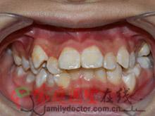 牙齿矫正前后对比-治疗前