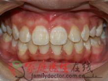 牙齿矫正前后对比-治疗后