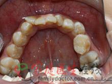 牙齿矫正前后对比-治疗前外观