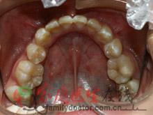 牙齿矫正前后对比-治疗后外观
