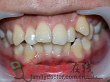 牙齿矫正前后对比-治疗前正面