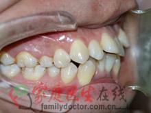 牙齿矫正前后对比-治疗前侧面