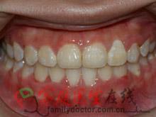 牙齿矫正前后对比-治疗后正面