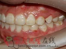 牙齿矫正前后对比-治疗后侧面