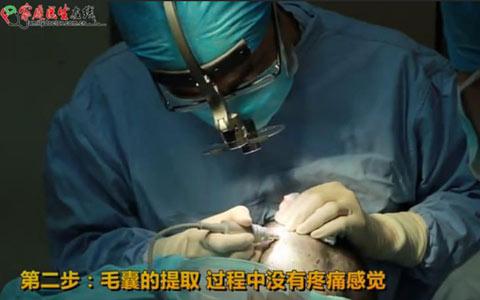 毛发移植手术过程第二步:毛囊提取