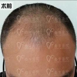 毛发移植术前图片
