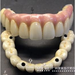 All-on-4智能全口种植牙