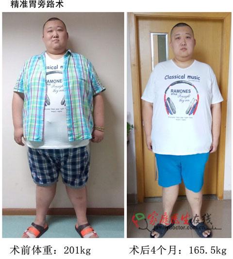 亚洲微创减肥真人秀 胖友们共减重11350斤