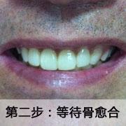 标准种植牙步骤