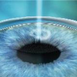 角膜瓣复位更准确