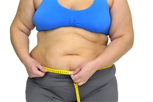 睡眠呼吸暂停综合征病因二:肥胖