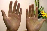 王继勇:手汗症带来诸多生活困扰 简单手术可轻松治愈