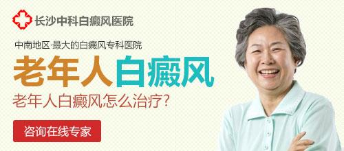 老年白癜风的常见症状是什么