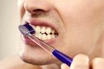 专家教你美白牙齿