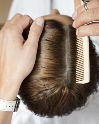 哪些疾病会导致脱发