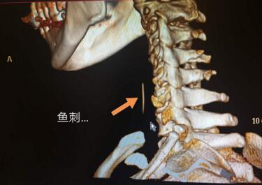 5旬男子误吞鱼刺卡喉一周 咽痛高烧两天未进食