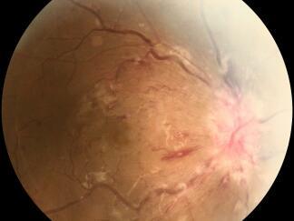 27岁女生差点失明 给眼睛打针恢复光明