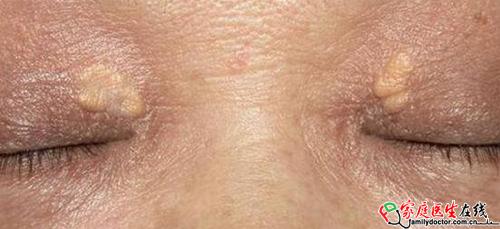 内眼角有黄色的斑?这是眼皮长了黄色瘤!