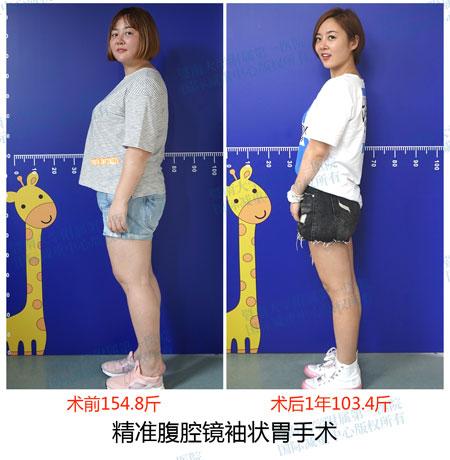 减重手术20年 广州这个团队为肥胖人群减重161000斤