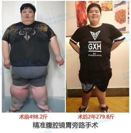 减重手术案例