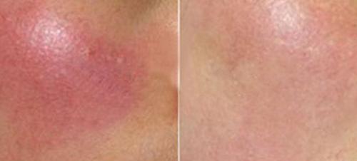 原因 膨隆 疹 大人の蕁麻疹(じんましん)|診察室でよくみる大人の病気