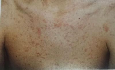"""""""疹""""痒!荨麻疹和湿疹为何反复发作?中医治疹止痒有妙招"""
