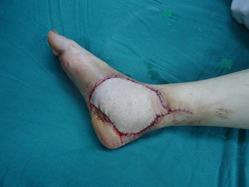 """蚊虫叮咬后双足大面积溃烂 医生巧用皮瓣移植来""""保足"""""""