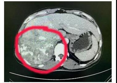 肝部18cm肿瘤成功切除 医生提醒:巨大肝癌仍有可能手术切除