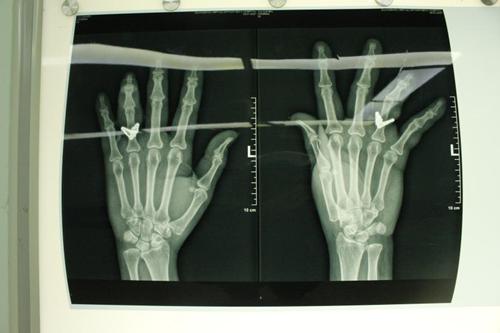 戒指因受伤嵌入皮肉 大爷手指差点保不住