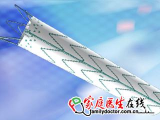 微创 直管型覆膜支架及输送系统