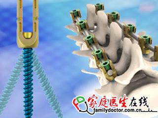 微创 脊柱后路内固定系统器械包