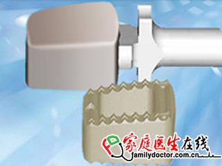 颈椎椎间融合器器械包