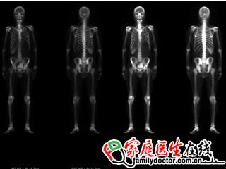 处理查看工作站软件(Evolution for Planar Bone)