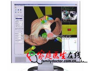 三维放射治疗计划系统