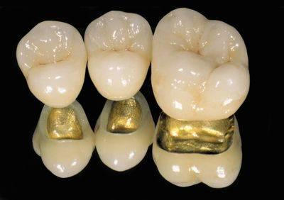 定制式义齿