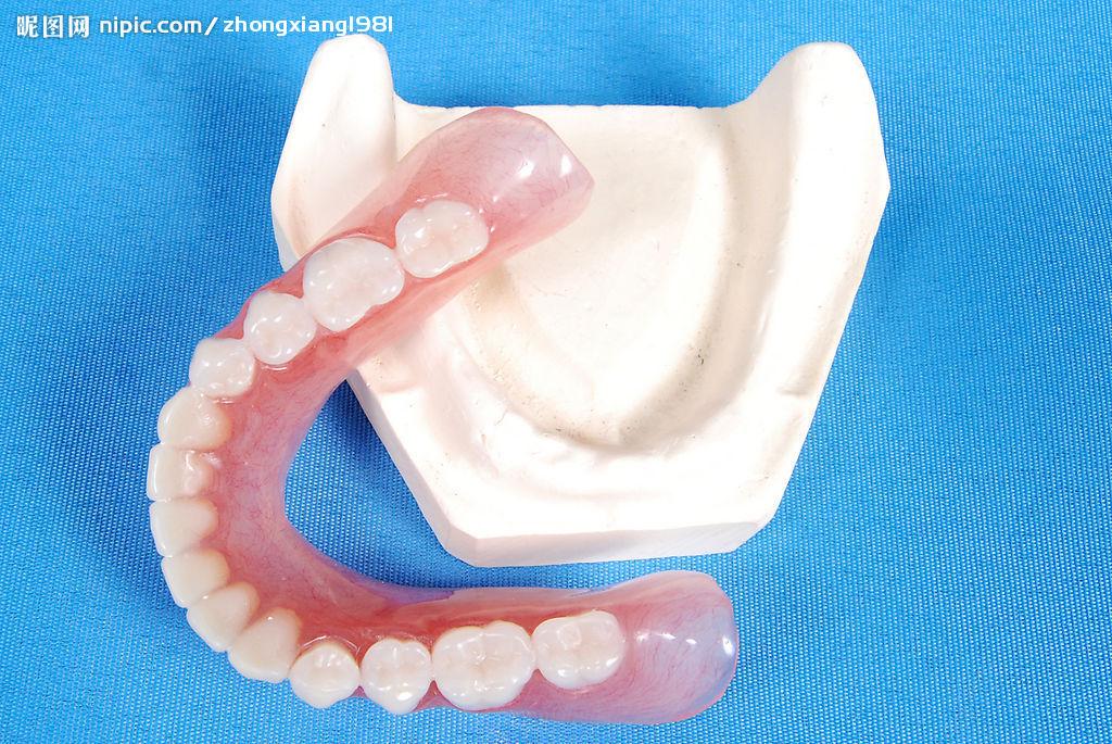 金属活动假牙支架图片