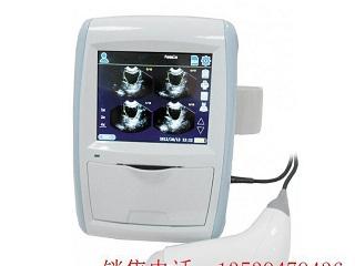 膀胱扫描仪