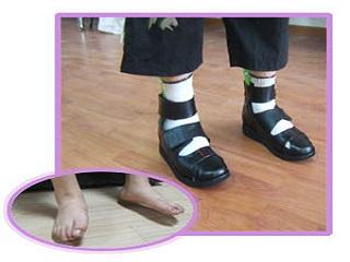 德林 矫形鞋