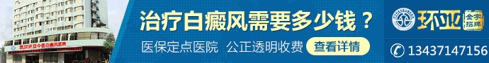 武汉环亚中医白癜风医院-武汉治疗白癜风大概要多少钱