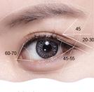 韩式开眼角手术