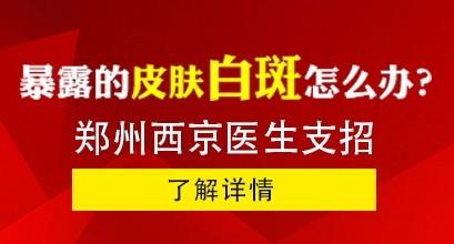 郑州西京医院:早期的手部白癜风怎么治