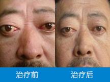 中山医博济白云医院-微创 结节 不手术零复发