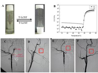 Micro Therapeutics Inc.dba ev3 Neurovascular MTI Onyx液态栓塞系统