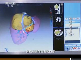 强本 肝癌手术模拟软件