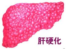 兰州西京中医肝病研究院-5年乙肝小三阳转为肝硬化是怎么回事