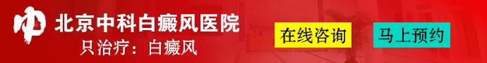 北京中科白癜风医院-山东白癜风医院