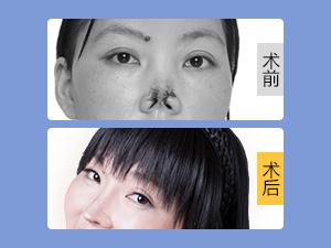 上海伊莱美医疗美容医院 《恐怖的爱》,女子被前夫咬掉鼻子吞肚