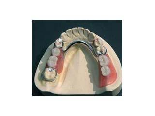 金属支架可摘局部义齿(商品名:钢托牙)